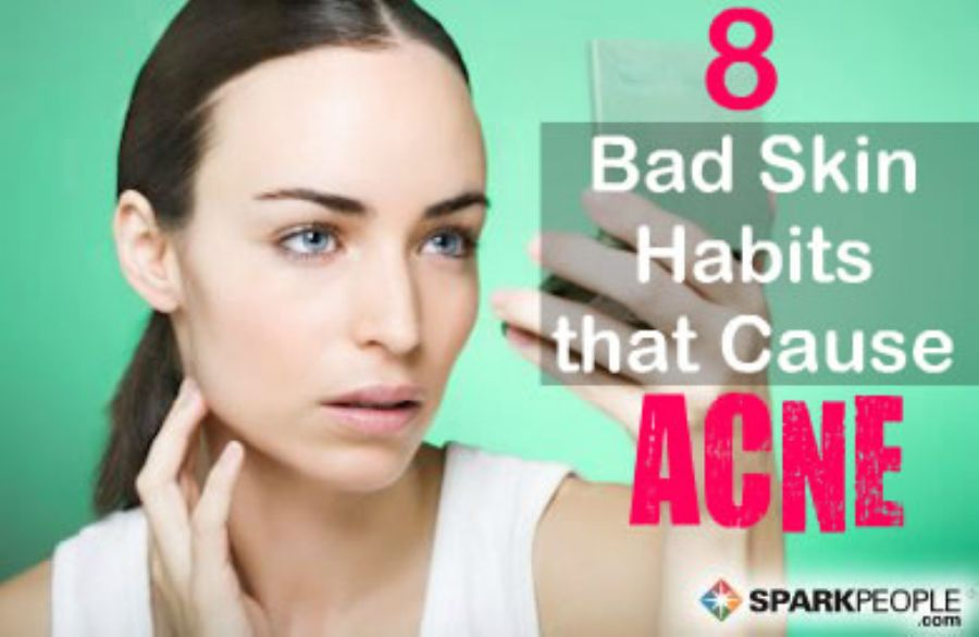 8 Face Faux Pas That Cause Pimples Slideshow | SparkPeople